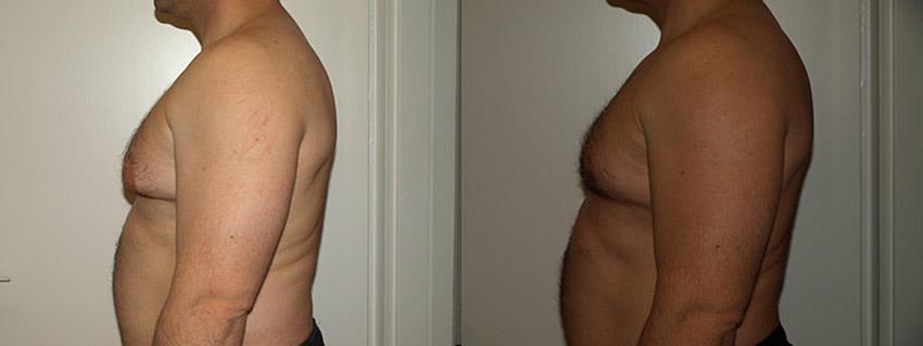 Gynecomastia (férfi emlő plasztika, szükség szerint zsírleszívással)