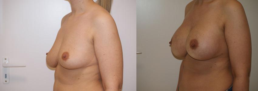 Mellnagyobbítás implantátum beültetésével
