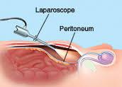 Laparoscopos lágyéksérv műtét
